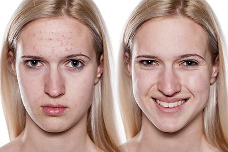 Hoe raak je die acne kwijt?